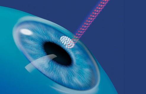 Оптическая алмазная хирургия