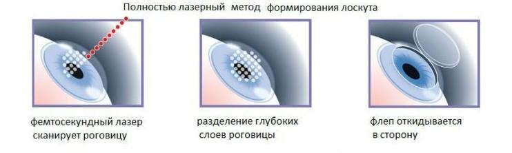 Этапы операции Femto Lasik