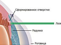 Лазерная иридэктомия при глаукоме