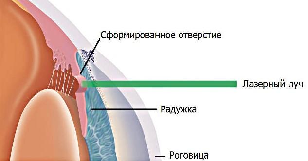 Лазерная иридэктомия