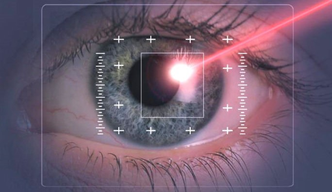Лазерная коррекция