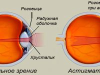 Виды операций при астигматизме