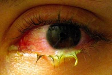 Капли от аллергии Кетасма