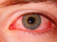 Конъюнктивит глаз у взрослых