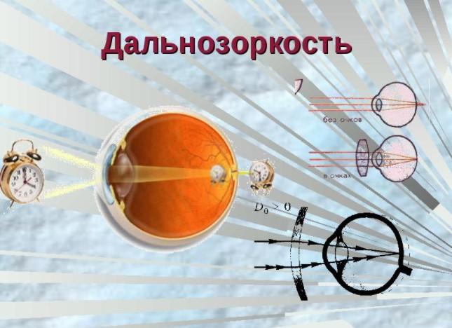 Нормальное зрение и зрение с дальнозоркостью
