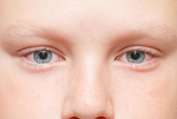 Синдром сухого глаза у детей