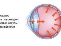 Измерение внутриглазного давления (ВГД)