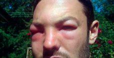 Что делать если мошка укусила в глаз?