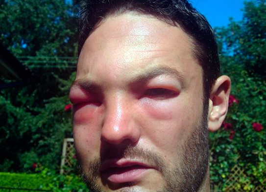 Мошка укусила в глаз