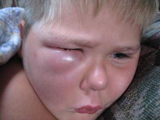 Ребенка в глаз укусила мошка