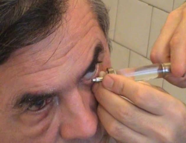 Зондирование слезного канала