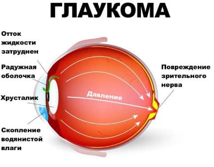 Глаукома причины возникновения болезни