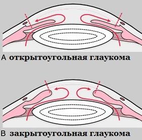 Разновидности глаукомы