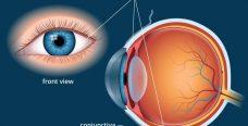 Склера глаза