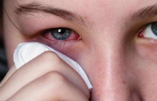 Капли для глаз Дексофтан