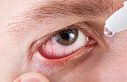 Капли для глаз Моксифлоксацин-оптик форма выпуска